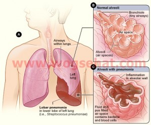 Lobar_pneumonia_illustrated