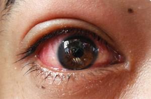 Cara Tradisional Mengobati Infeksi Mata
