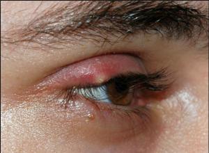 Penyebab mata bisa bintitan