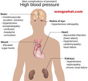 Cara Mengatasi Tekanan Darah Tinggi atau Hipertensi