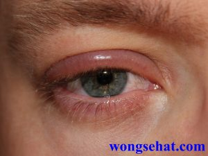 Cara menghilangkan bengkak di mata